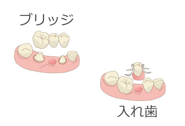 健康な歯を削る必要がない