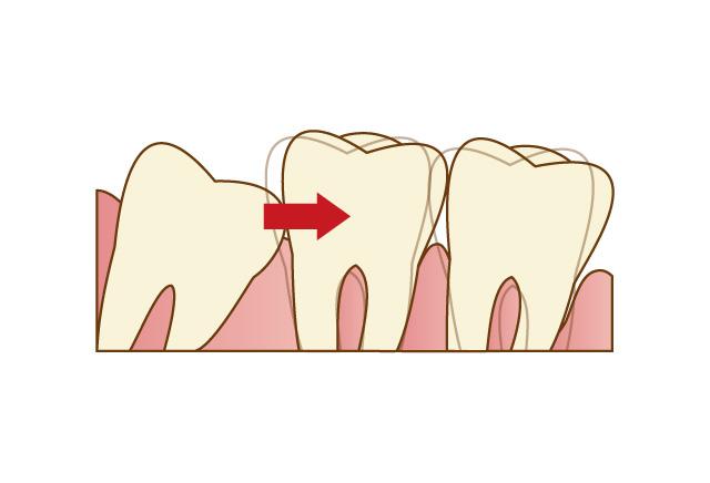 抜歯する場合