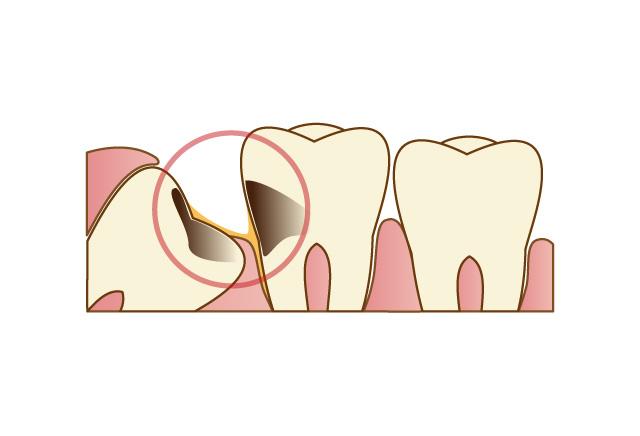 口臭、虫歯、歯周病、顔が歪む原因になります